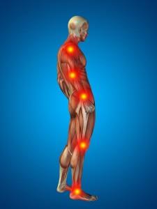 Calgary Muscles Pain Treatment